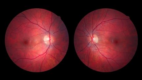 Alumnus Tim Prudhomme's retinas